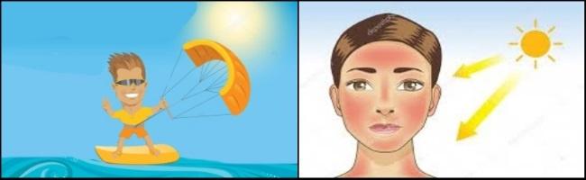 bảo vệ bạn khỏi bỏng nắng