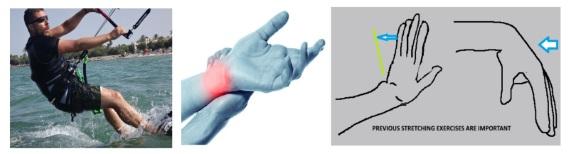 5-Handgelenksverletzung