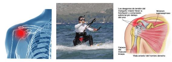 6 Schulterverletzungen-kitesurfen