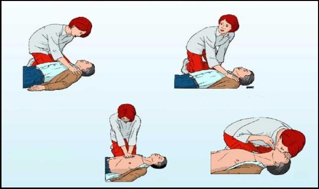 6-thức-và-cách-thực-hiện-CPR