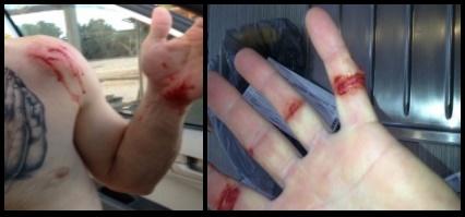 10 heridas en los dedos